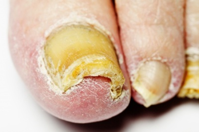 Fungal Nail treatment Billericay